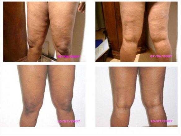 Ageloc legs