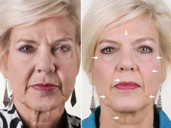 ageloc1 before and after